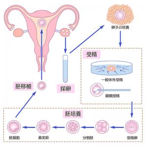 体外受精の図解